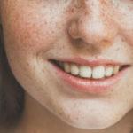 Nel 2017 la moda Make Up presenta le lentiggini finte